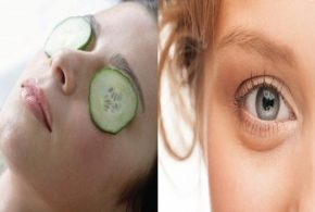 6 Home Remedies to Naturally Treat Puffy Eyes