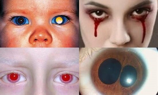 Top 10 Shocking Eye Disorders