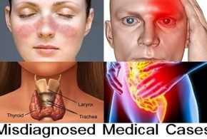 Top 10 Misdiagnosed Medical Cases
