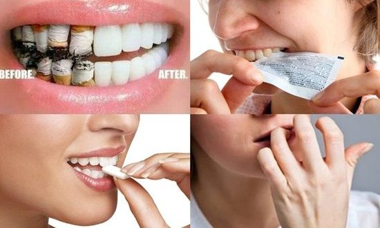 Top Ten Harmful Habits For The Teeth