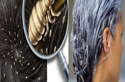 Astonishing Head Lice Natural Remedies