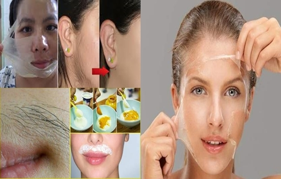 Home remedies to get rid of facial hair