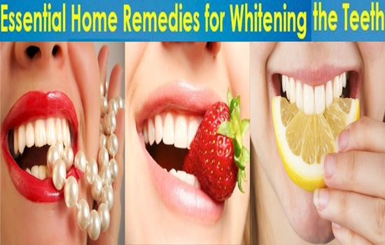 Top Ten Home Remedies To Whiten Teeth