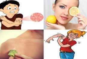 Eight Home Remedies For Itchy Skin