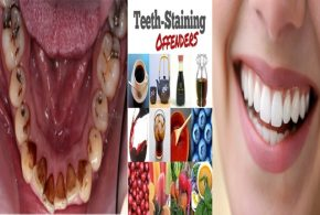 7 Major Factors That Stain Your Teeth and How to Prevent Staining