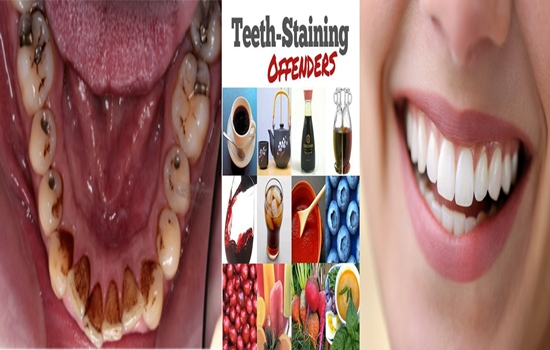 Factors That Stain Your Teeth and How to Prevent Staining