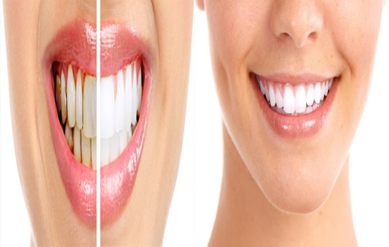 Natural Home Remedies to Heal Tooth Cavities