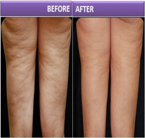 Wonderful Methods to Treat Cellulite