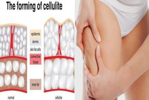 What are the real causes behind cellulite?