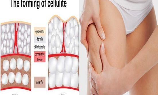 causes behind cellulite