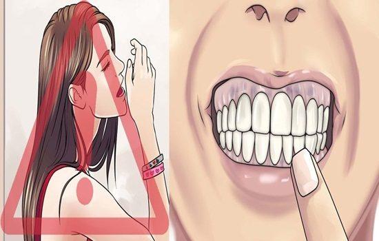 Indicators To Gum Diseases