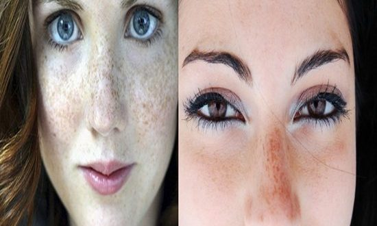 Tips To Reduce Pigmentation Marks From The Skin