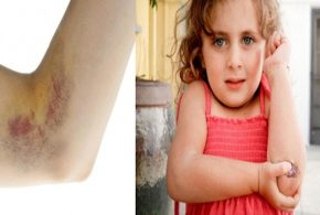Do You Bruise Easily? Check out the Causes Here