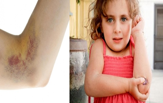 Bruise Easily Check out the Causes