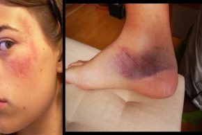 Easy and Fast Ways to Heal Bruises, Cuts, Burns and Blisters