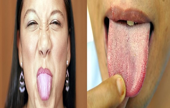 Effective And Fast Home Remedies For White Coated Tongue
