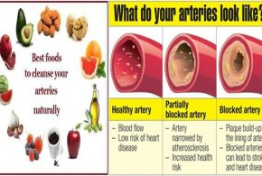 Three Super Foods For Cleansing The Arteries