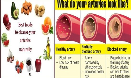 Foods For Cleansing The Arteries