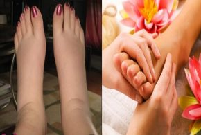 Three Home Remedies For Swelling Feet