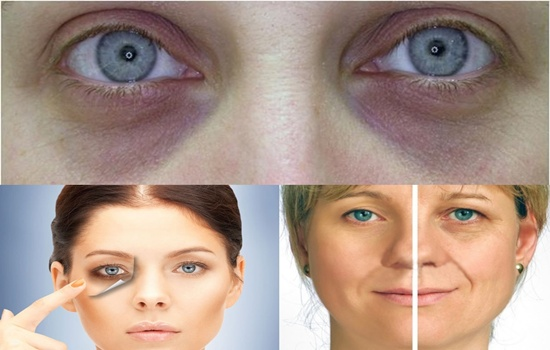Interesting Causes of Dark Circles under the Eyes You May Have Not Known
