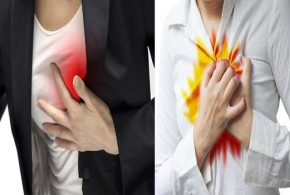 Six Quick Home Remedies For Heartburn