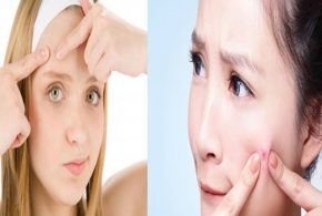 Seven Tips To Treat Acnes Vulgaris Quickly