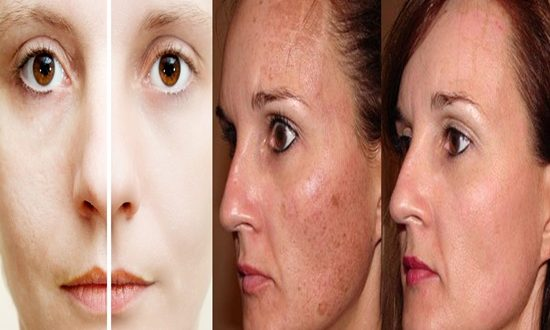 Ways To Minimize Your Enlarged Skin Pores