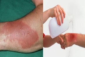 What To Do As Soon As You Get A Minor Burn