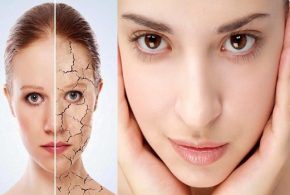 Three Worst Foods For Your Skin