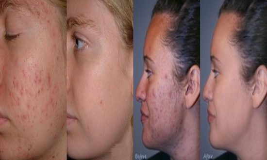 Acne caused by sex