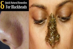 6 Easy Natural Ways to Get Rid of Blackheads
