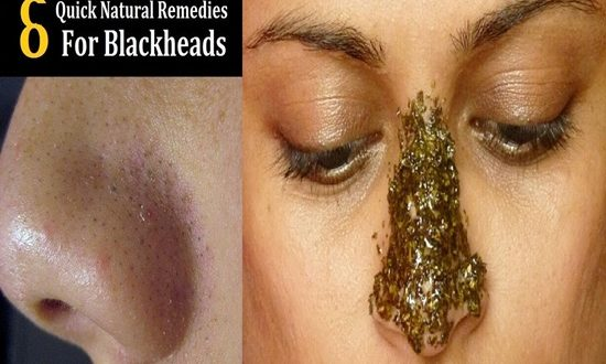 Easy Natural Ways to Get Rid of Blackheads