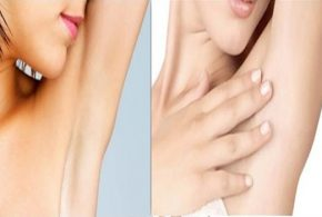 How To Lighten Dark Underarms Quickly