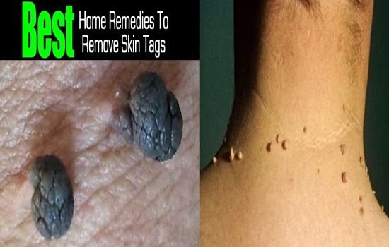 How to Naturally Remove Skin Tags At Home