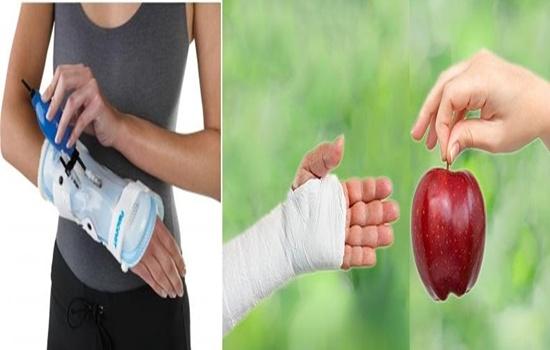 How to Speed Up Bone Healing