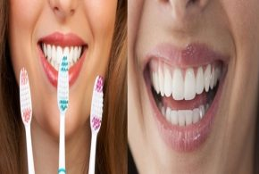 Four Mistakes To Avoid While Brushing Your Teeth