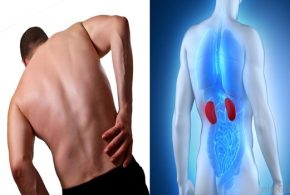 Four Signs You May Have A Kidney Disease