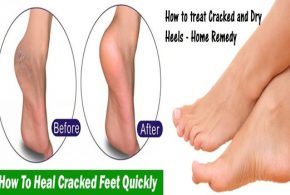 Helpful Tips To Treat Cracked Heels