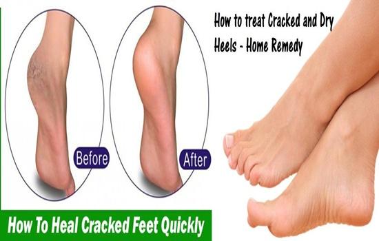 Tips To Treat Cracked Heels