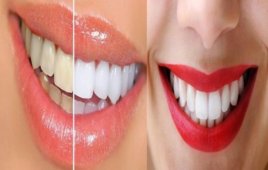 Whiten Your Teeth With These Natural Remedies
