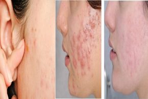 ADULT ACNE: WHAT ARE THE CAUSES AND HOW TO FIHGT IT?