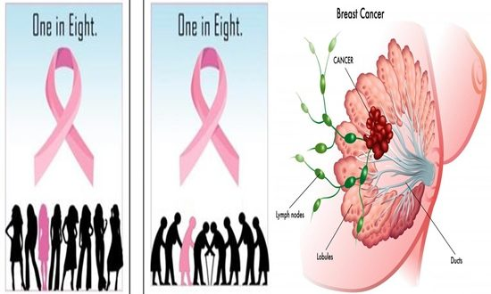 Breast Size Contributes To Developing Breast Cancer