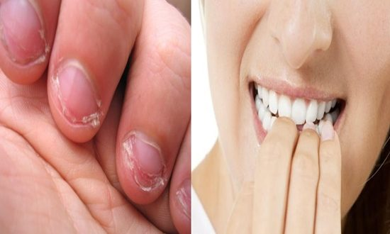 CAUSES & RESULTS OF NAIL BITING AND HOW TO STOP