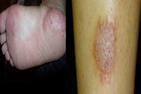 ECZEMA - OVERVIEW TO HELP YOU KNOW ABOUT ECZEMA