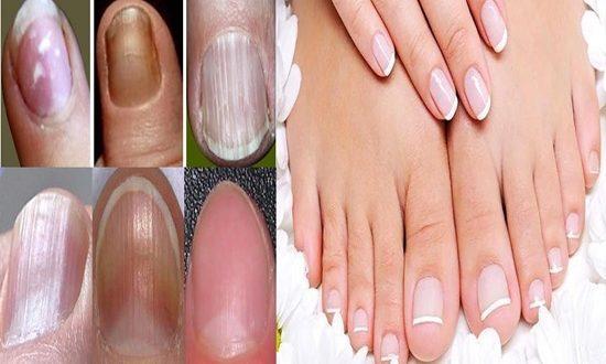 Nail Health - pay enough attention nail health
