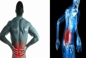 Three Steps To Treat Your Lumbar Muscle Strain (Lower Back Pain)