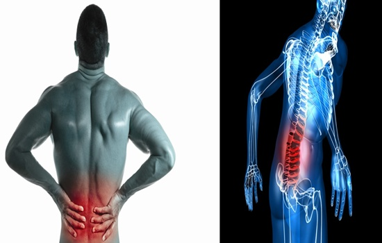 Treat Your Lumbar Muscle Strain (Lower Back Pain)