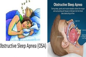 Do you have sleep apnea, and what do you know about it?