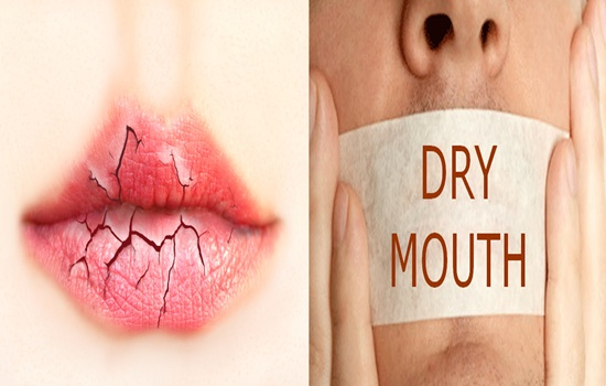HOW TO MANAGE TOO LITTLE SALIVA OR DRY MOUTH