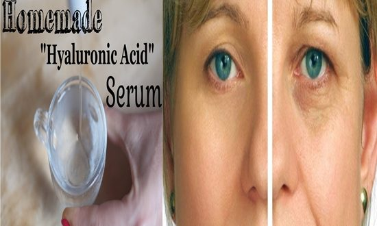 Benefits of Hyaluronic Acid for Your Beauty